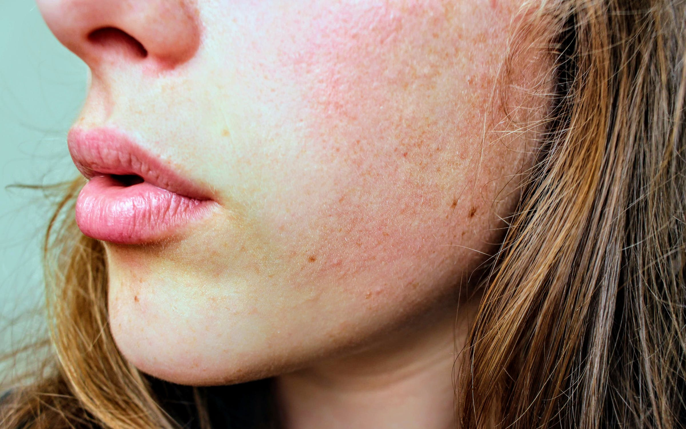 All you need to know about Eczema