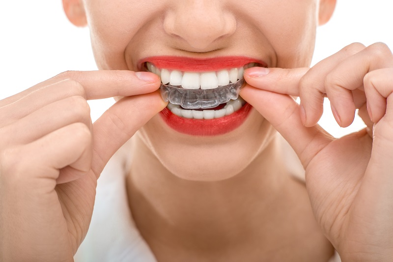 Check Top 6 Benefits When You Are Thinking About Invisible Braces
