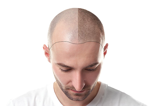 Benefits Of A NYC Hair Transplant Procedure