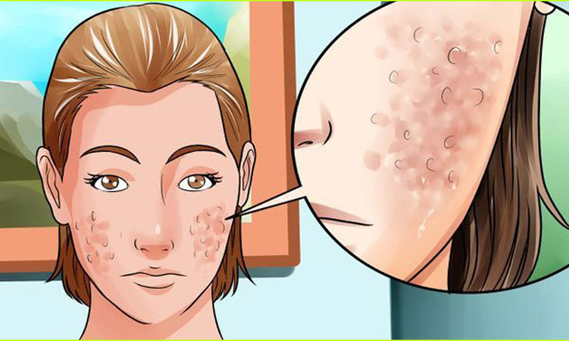 Getting Rid of Acne Scars and Marks