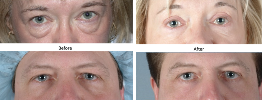 Anesthesia Options for Blepharoplasty