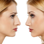 Healing After Rhinoplasty