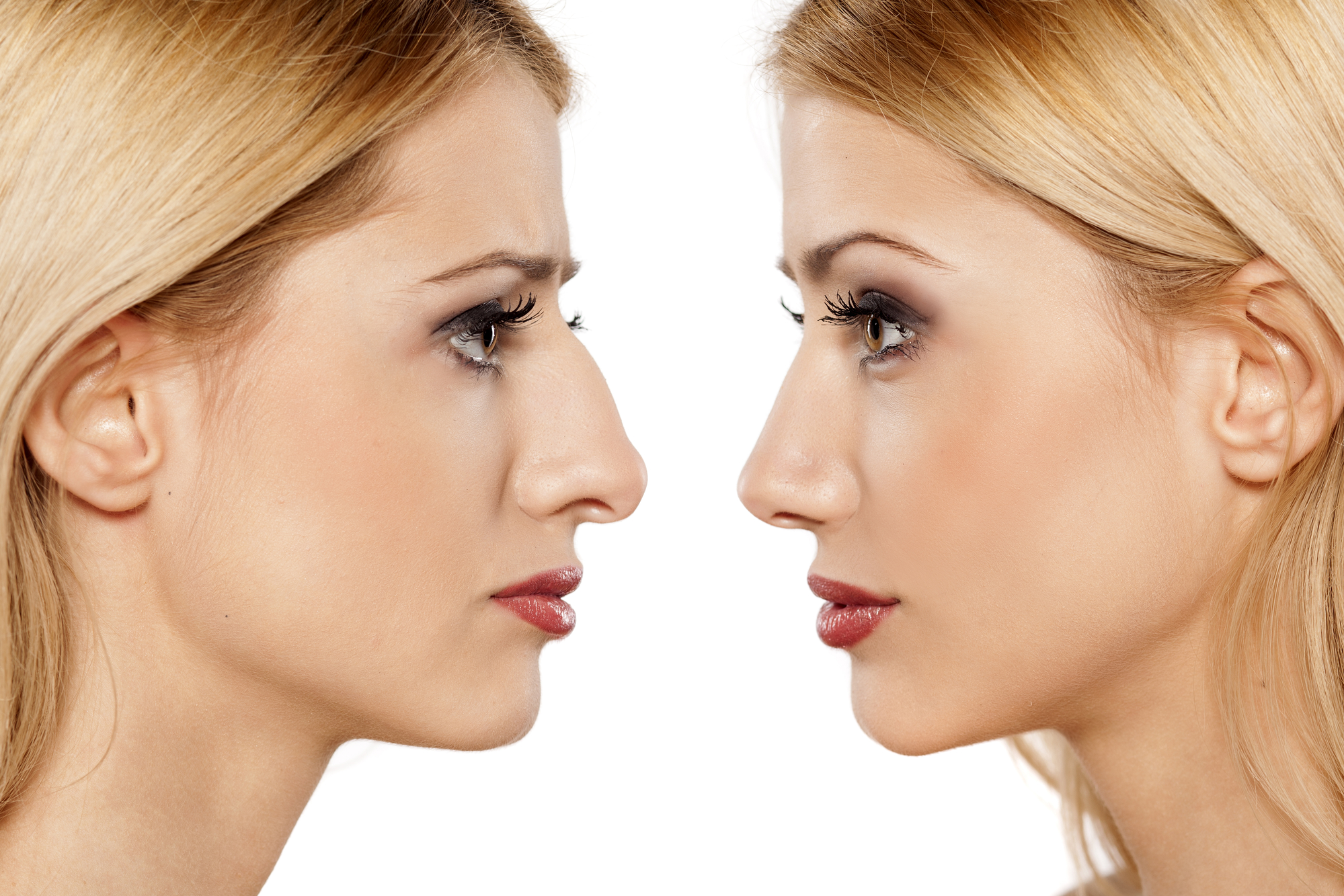 Tips For Faster Healing After Rhinoplasty