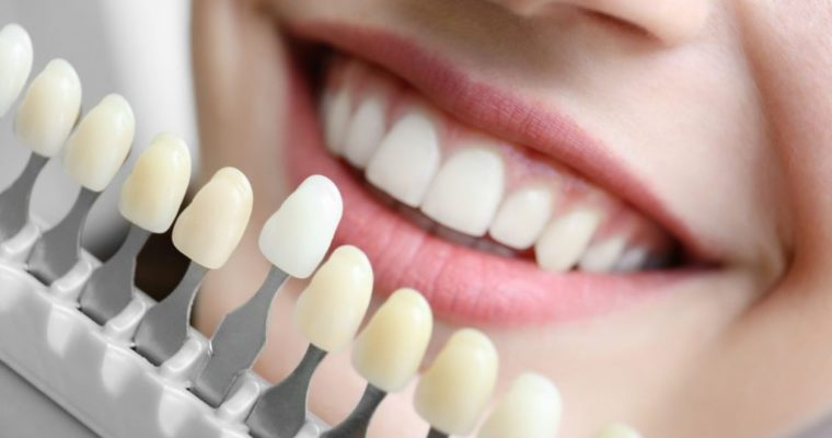 Smile Like a Celebrity with Dental Implants