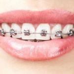 metal brace face