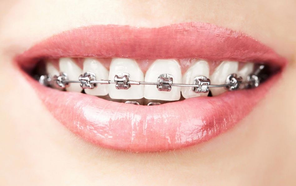 Wear a Smile Daily with Clear Braces
