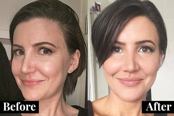 Can Facelift Results Be Permanent?