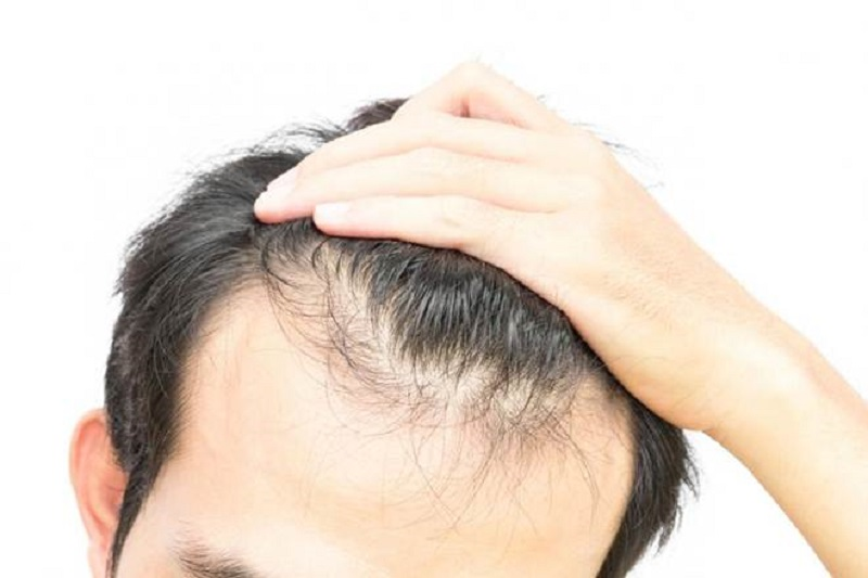 Top 5 Benefits of Hair Growth Supplements