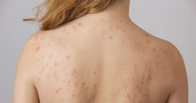 3 Tips for Summer Skin