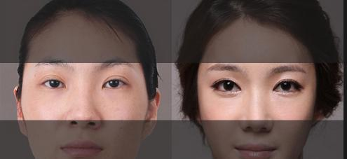 Double Eyelid Surgery: Semi-Incisional vs Fully-Incisional Techniques