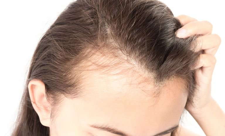 Singapore Dermatologist Explains 5 Top Causes Of Hair Loss