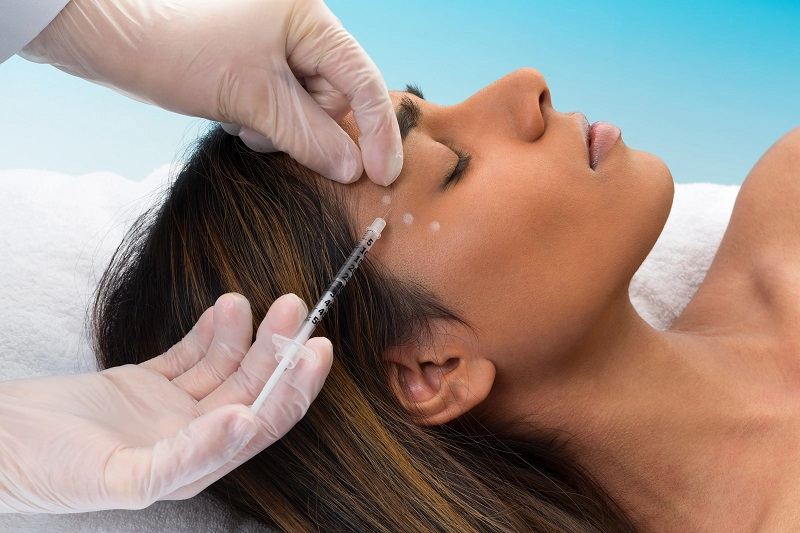 The Benefits of Trying Botox