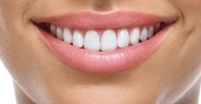 How to Achieve the Perfect Smile