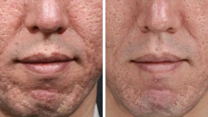 Top 3 Things You Should Know Before Booking a Microneedling Session