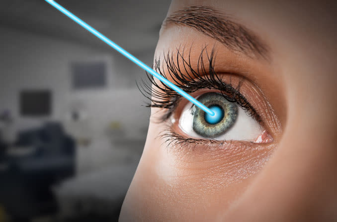 5 Questions to Ask Before Undergoing Lasik Treatment