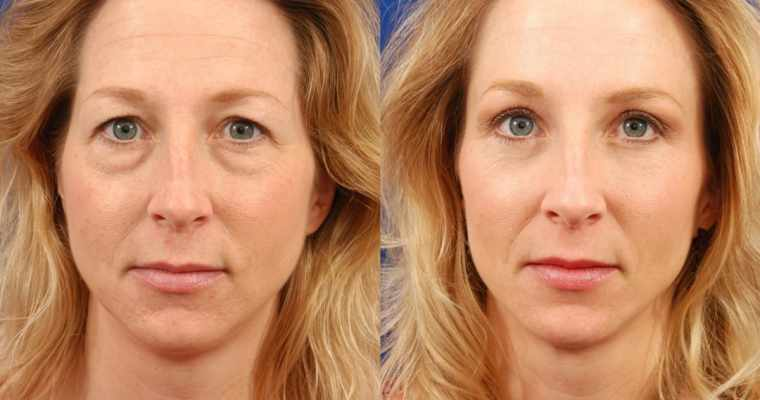 What Is Blepharoplasty and Should You Get One?